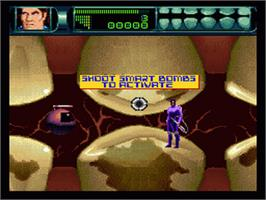 In game image of Rex Ronan: Experimental Surgeon on the Nintendo SNES.